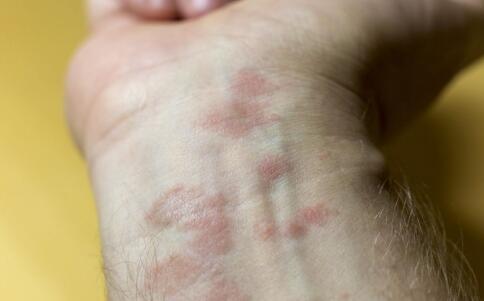 牛皮癣症状皮肤病要怎么及时治疗呢
